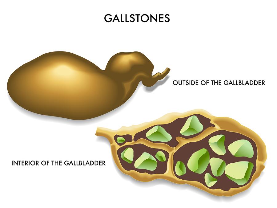 MTHFR and Digestion: Methylation Impacts Gallbladder