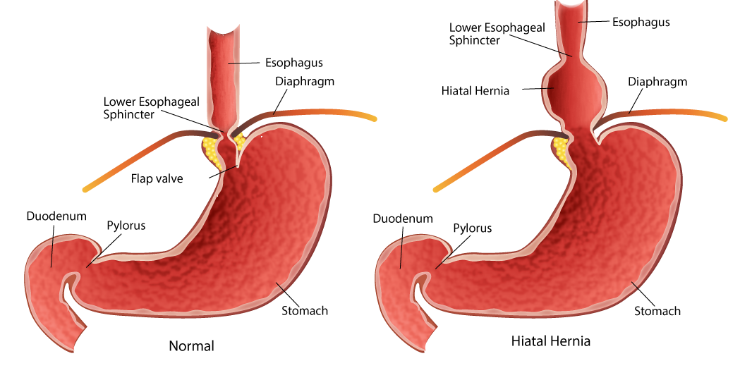 Mthfr And Digestion Healing The Hiatal Hernia Beyond Mthfr